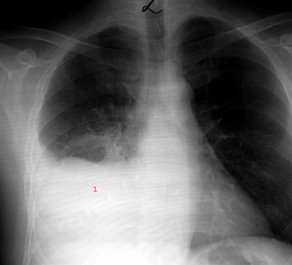 X-ray of pneumonia, lower portion of the right lung