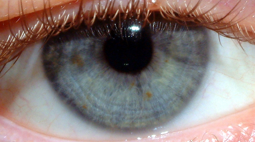 Photo of normal eye