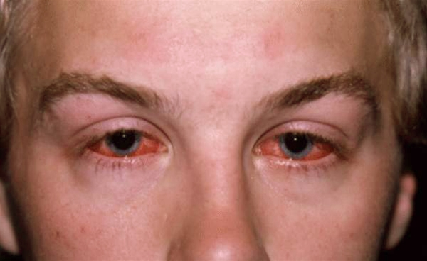 Photo of man with conjunctivitis